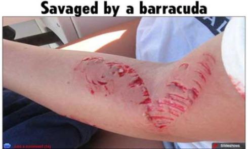 barracuda bite humans - photo #16