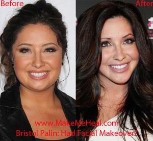 bristol plastic surgery