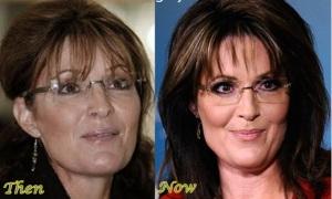 palin plastic surgery one