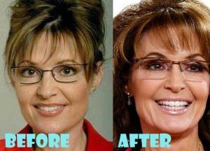 palin plastic surgery