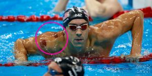 phelps cupping one