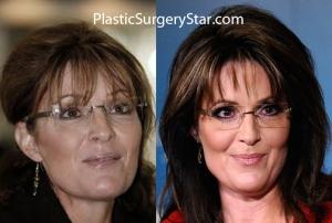 palinplastic-surgery-two